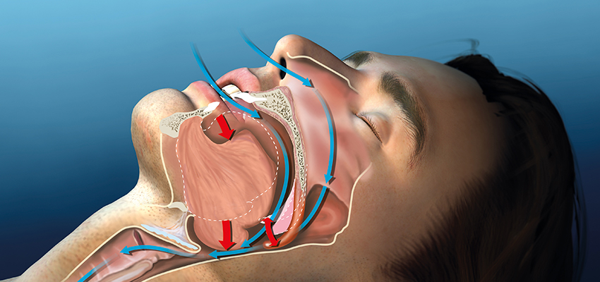 Medical Illustration of Snoring