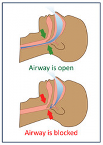 Blocked airway due to structural deformities